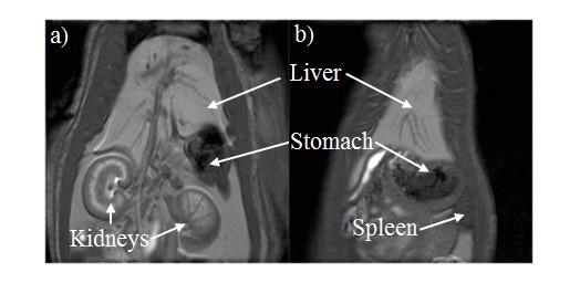 Kidneys, liver, spleen, stomach