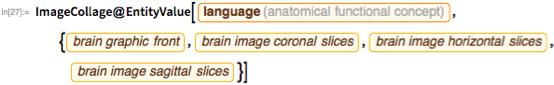 """ImageCollage@  EntityValue[   Entity[""""AnatomicalFunctionalConcept"""",     """"Language""""], {EntityProperty[""""AnatomicalFunctionalConcept"""",      """"BrainGraphicFront""""],     EntityProperty[""""AnatomicalFunctionalConcept"""",      """"BrainImageCoronalSlices""""],     EntityProperty[""""AnatomicalFunctionalConcept"""",      """"BrainImageHorizontalSlices""""],     EntityProperty[""""AnatomicalFunctionalConcept"""",      """"BrainImageSagittalSlices""""]}]"""